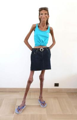 the most skinniest girl in the world