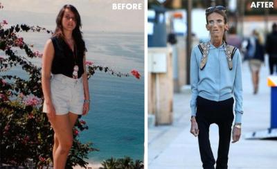 skinniest-woman-in-the-world
